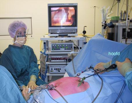 Galstenen verwijderen zonder operatie