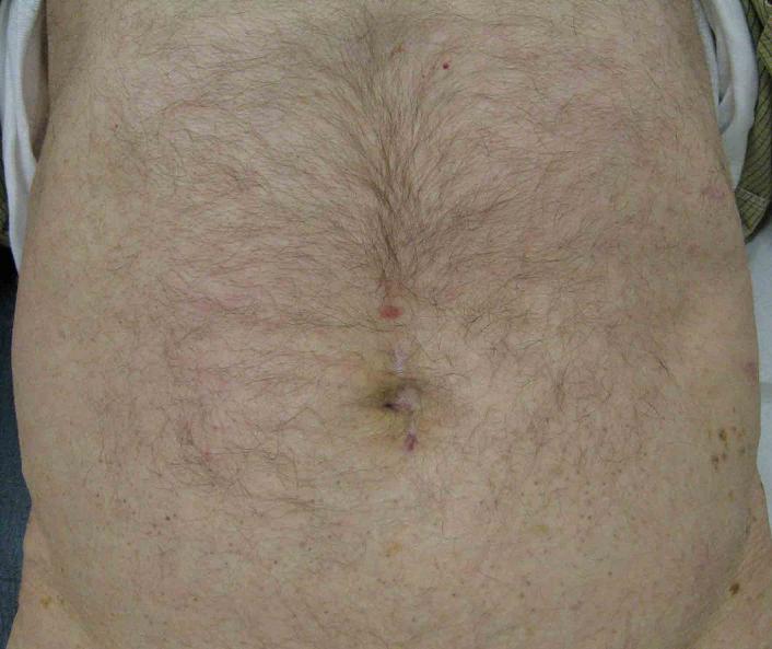 tumor begin dikke darm
